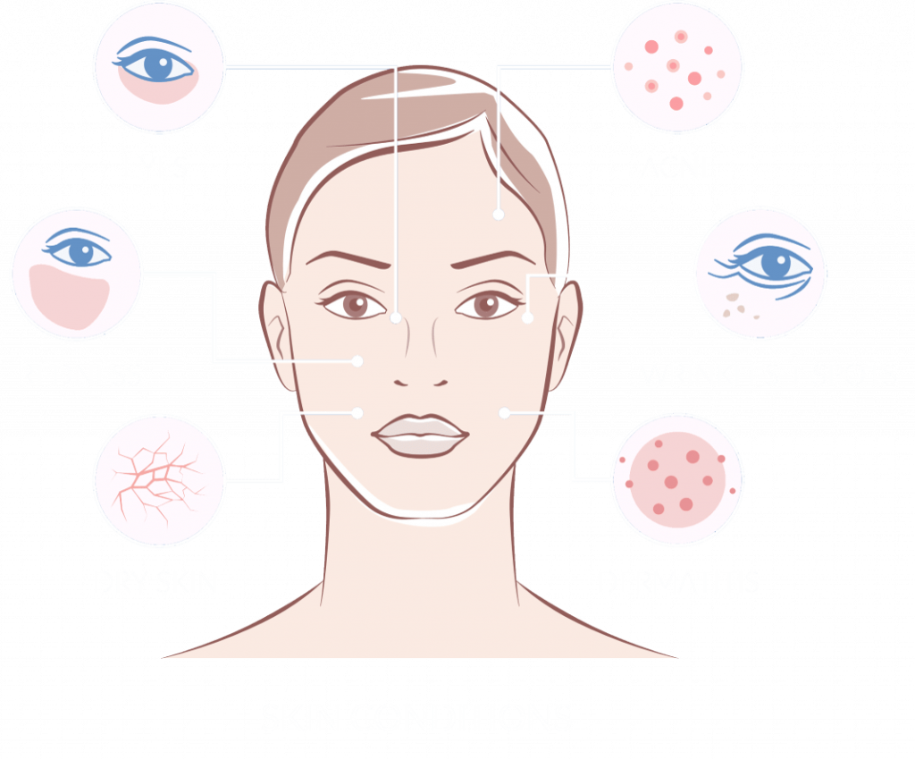 skin-conditions-min